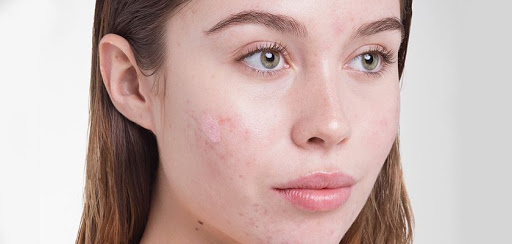Colloidal Silver for Acne uses