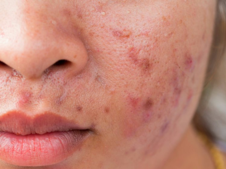 How Can Zinc Impact Your Acne? Learn More | Vitagene